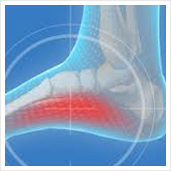 Arch Pain Symptoms Causes Treatment By Sydney Heel Pain
