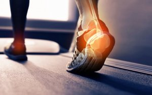 heel pain from running
