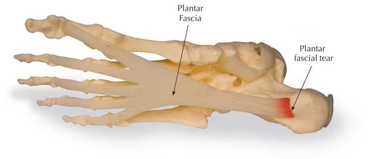 Heel Pain from Plantar Fasciitis