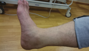 back of the heel due to Achilles tendonitis