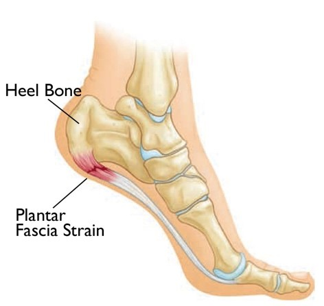 Plantar Fasciitis Causes and Risk Factors Explained